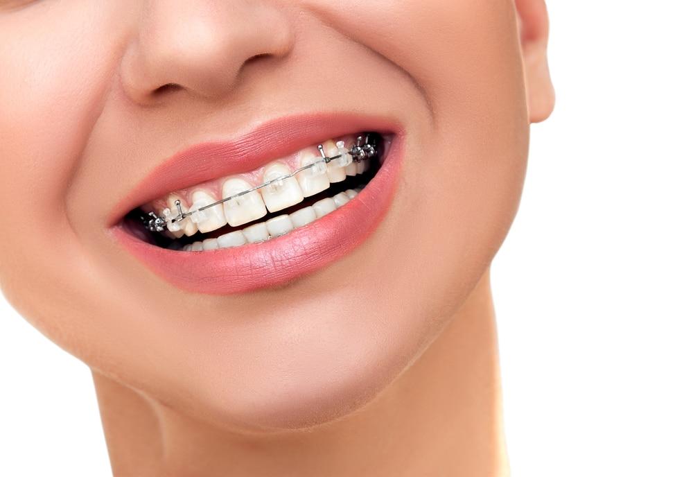 تعرف على أهم الفوائد المرتبطة بتقويم الأسنان